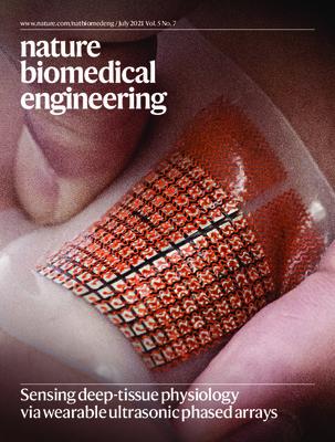 Sensing deep-tissue physiology via wearable ultrasonic phased arrays