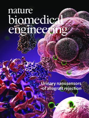 Urinary nanosensors of allograft rejection