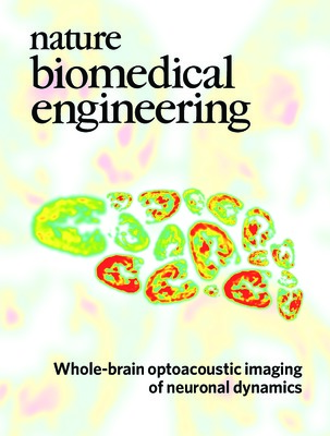 Whole-brain optoacoustic imaging of neuronal dynamics