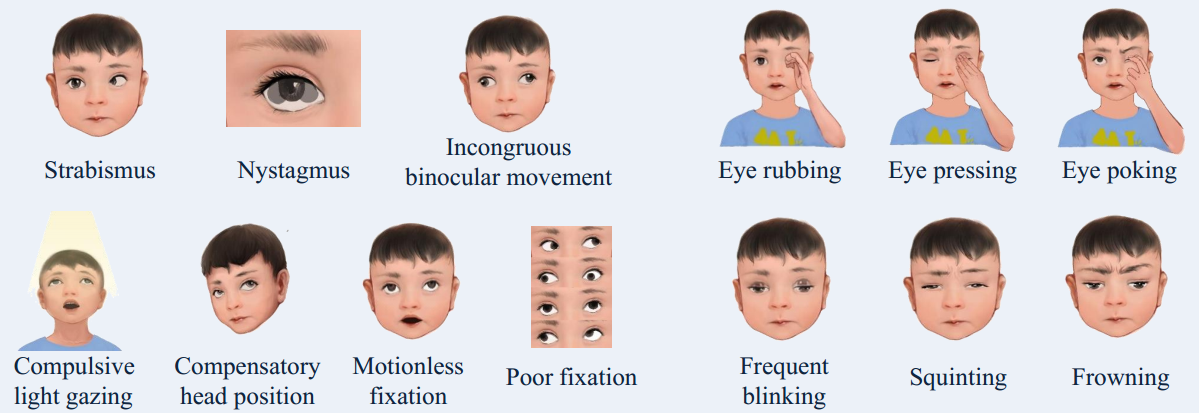 Deep learning based on dynamic behavioural phenotypes to evaluate the visual function of infants