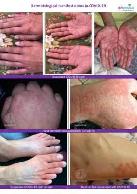 Image library – the dermatological signs of COVID-19